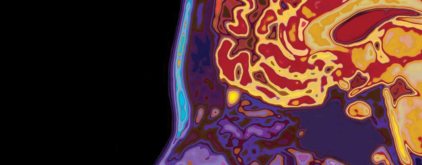 How Early Can Alzheimer's Be Diagnosed?