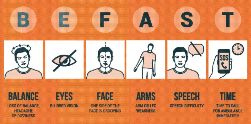 When it comes to stroke, you must be fast